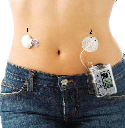 Инсулиновая помпа Paradigm Veo Mmt 754